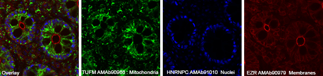 Staining of mitochondria itochondria using Anti-TUFM (AMAb90966), nuclei using Anti-HNRNPC (AMAb91010) and plasma membranes using Anti-EZR (AMAb90979)