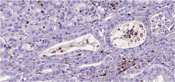 IHC staining of human stomach cancer Anti-MMP9 antibody (AMAb90804)