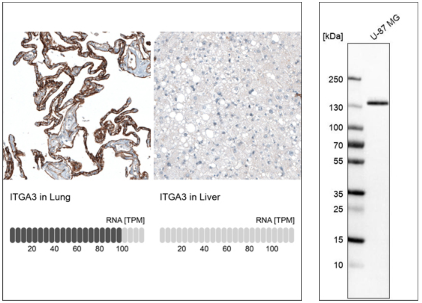 IHC staining using monoclonal antibody Anti-ITGA3 (AMAb91446) showing strong immunoreactivity in lung and absence of staining in liver