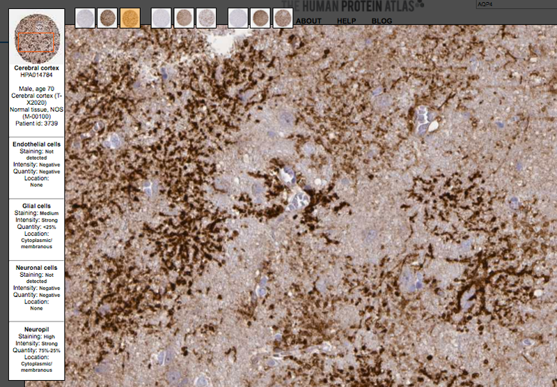 Closeup of an example staining on the Aquaporin 4 cerebral cortex page on the Tissue Atlas.