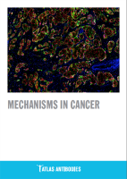 Mechanisms in Cancer